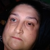 Sandy from Diamondhead | Woman | 45 years old | Cancer